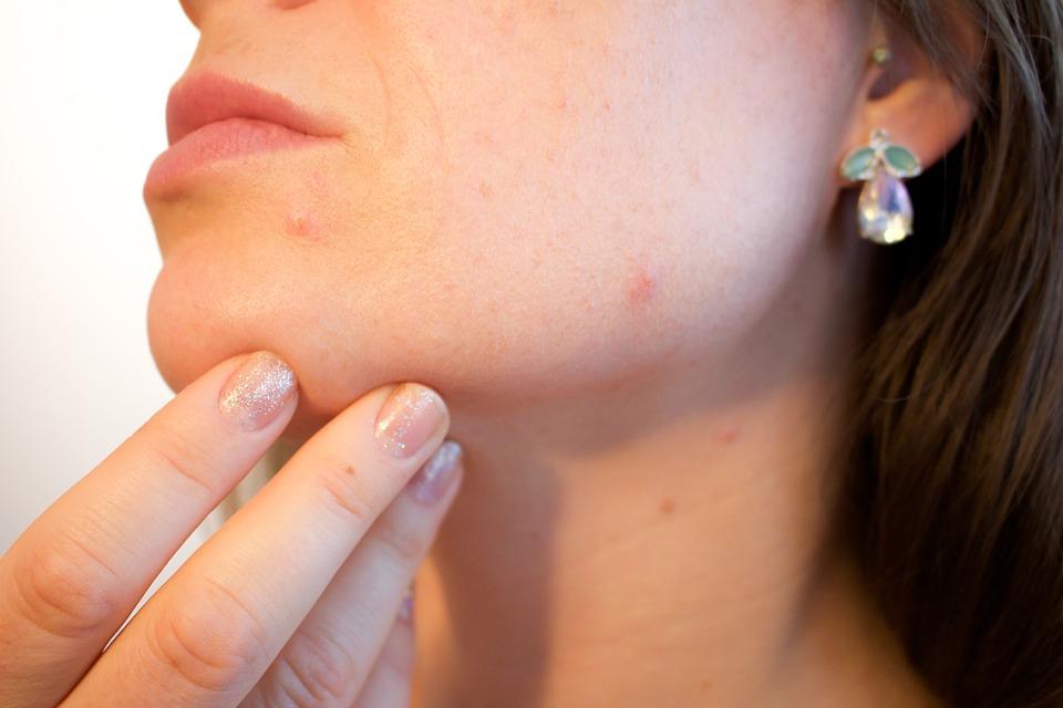 CBD oil for acne treatment